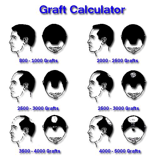 graftcalcu