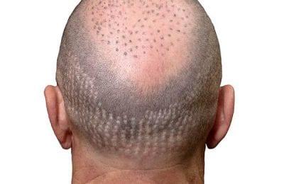 Присаждане на коса върху белег